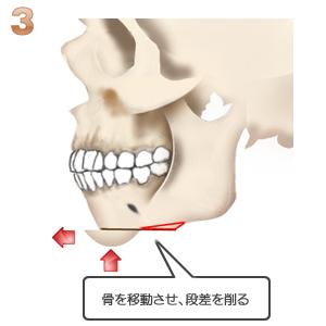 アゴ切り(中抜)+前出し:骨切り移動後段差を削る