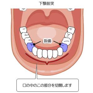 下顎前突:切開位置