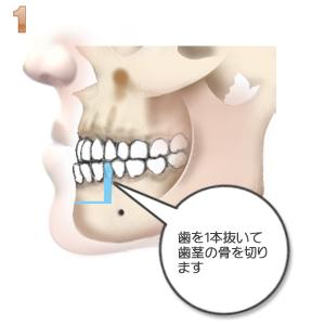 下顎前突:1本抜歯と骨きり