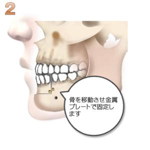 下顎前突:骨の移動