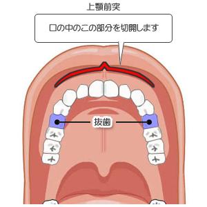 上顎前突:切開位置