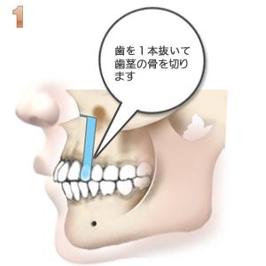 上顎前突:1本抜歯と骨きり