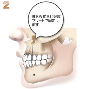 上顎前突:骨の移動