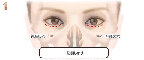 ドールチークプロテーゼ挿入の流れ:結膜切開:縫合