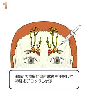 額ヒアルロン酸注入:局所麻酔で神経ブロック