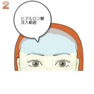 額ヒアルロン酸注入:ヒアルロン酸注入