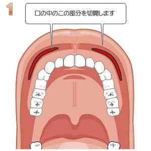頬骨形成術、口腔内切開部分