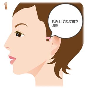 頬骨形成術もみあげの切開部分