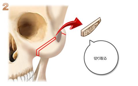 頬骨形成術、骨の切取り部分