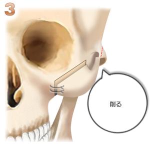 頬骨形成術、段差を削る