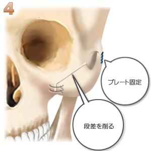 頬骨形成術、プレート固定