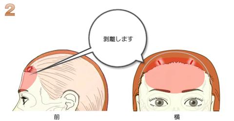 額輪郭ミニ形成、注入部分の剥離
