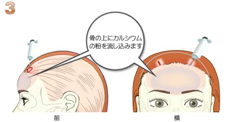 額輪郭ミニ形成、ハイドロキシンアパタイト注入