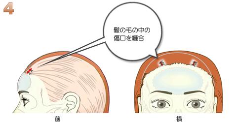 額輪郭ミニ形成、傷口の縫合