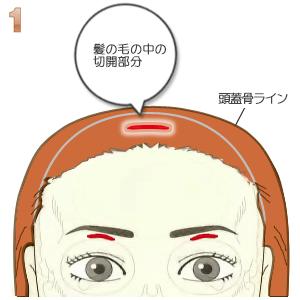 額プロテーゼ挿入術、切開