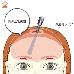 額プロテーゼ挿入術、骨の上の剥離