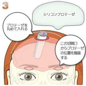 額プロテーゼ挿入術、プロテーゼ挿入