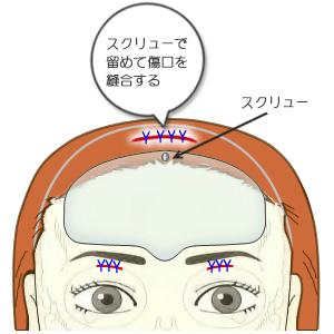額プロテーゼ挿入+スクリュー固定