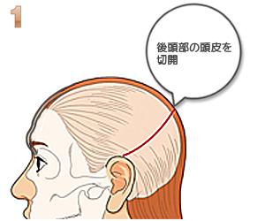 後頭部を切開するイラスト