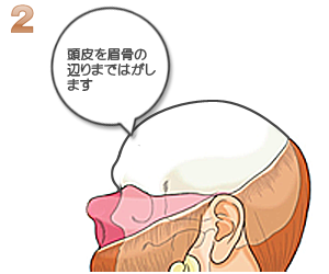 後頭部を切開し皮膚を眉骨の辺りまで剥がすイラスト