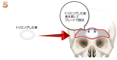トリミングした骨をプレートで固定するイラスト