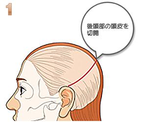 額輪郭形成:後頭部頭皮切開
