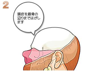 額輪郭形成:皮膚を眉骨の辺りまで剥がす