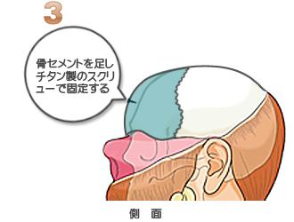 額輪郭形成:骨セメントを用いて額に高さや丸みを作る