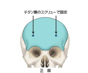 額輪郭形成:チタンのスクリューで固定