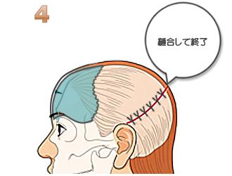 額輪郭形成:頭皮を戻し縫合