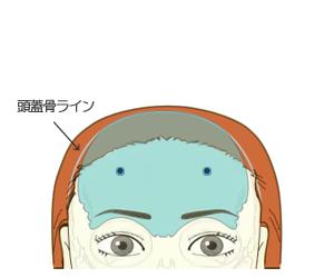 額輪郭形成:頭皮を戻し後頭部を縫合