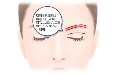 眉骨削り:切開する場所