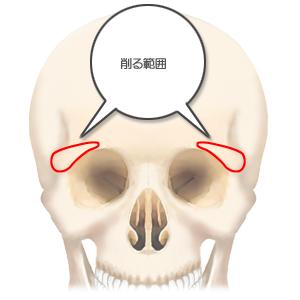 眉骨削り:頭骨正面