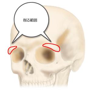 眉骨削り:頭骨斜め