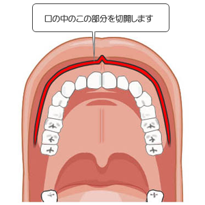 上顎短縮術の口腔内切開部分
