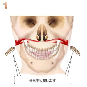 上顎短縮術、骨の切り離し