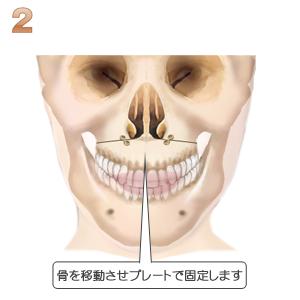 上顎短縮術、移動させ固定