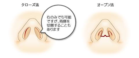 隆鼻術、切開方法