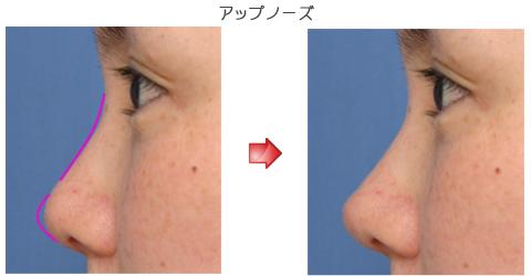 隆鼻術:アップノーズ