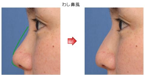 隆鼻術:わし鼻風