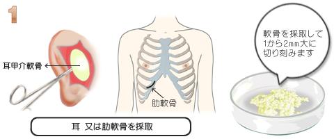 隆鼻術:自家組織軟骨採取