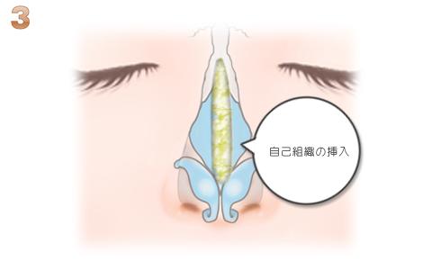 隆鼻術:自家組織挿入
