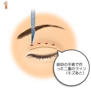 重瞼修正術(二重幅を広げる/埋没法):二重デザイン