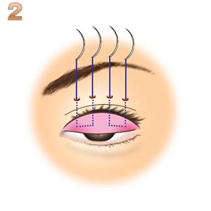 重瞼修正術(二重幅を広げる/埋没法):切開