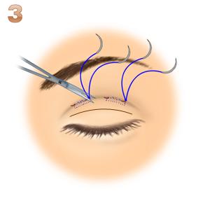 重瞼修正術(二重幅を広げる/埋没法):皮膚と腱膜の縫合