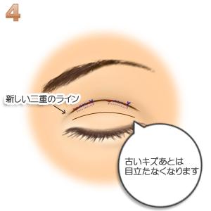 重瞼修正術(二重幅を広げる/埋没法):縫合して終了