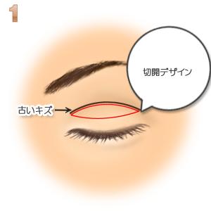重瞼修正術(二重幅を狭める):二重デザイン