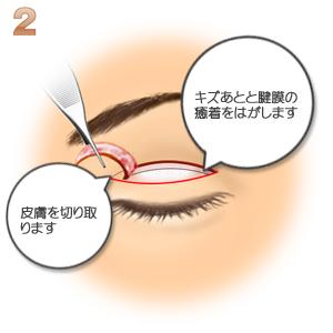 重瞼修正術(二重幅を狭める):切開