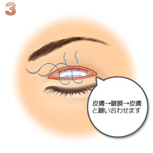 重瞼修正術(二重幅を狭める):皮膚と瞼膜の縫合