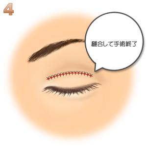 重瞼修正術(二重幅を狭める):縫合して終了